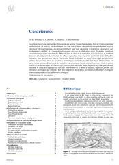 Césariennes.pdf